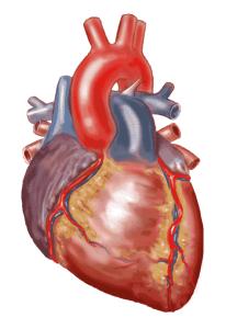 Heart strokes
