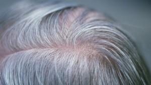 grey hair gene