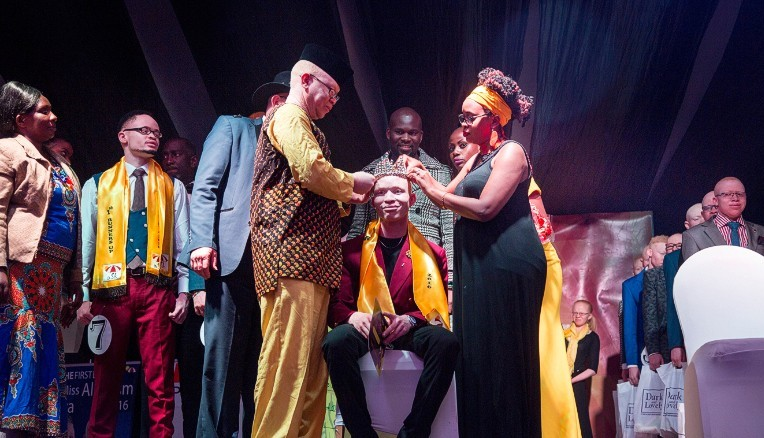 Albinism Beauty Pageant