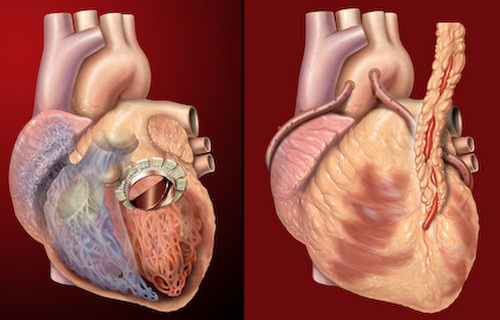 Physical Exercise Can Heal that Bad Heart