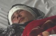Husband Cuts Afghan Woman's Ears