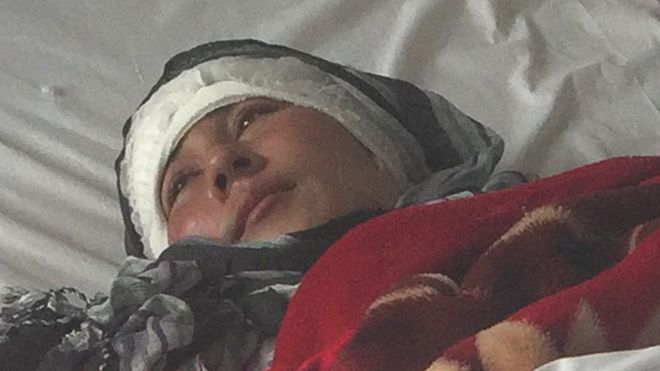 Husband Cuts Afghan Woman's Ears