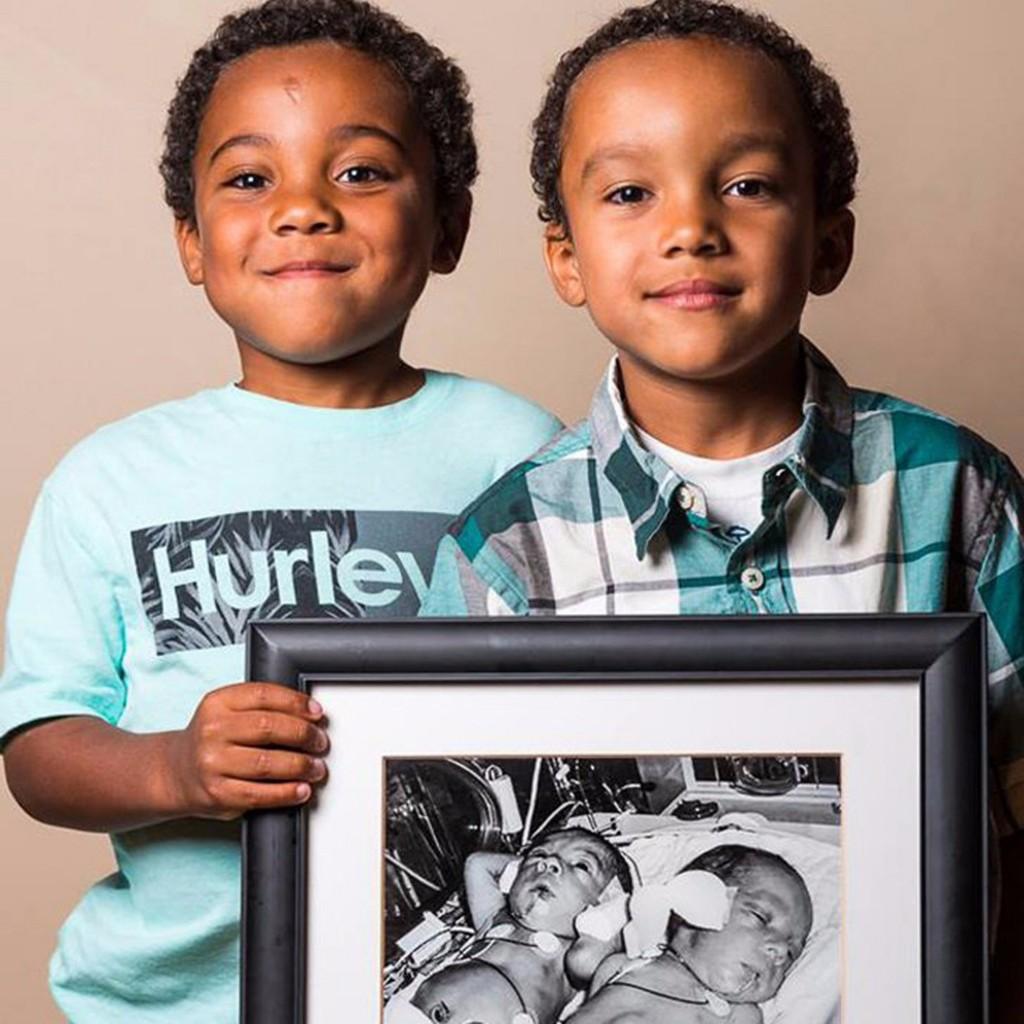 Preterm Infants 3